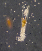 sporocytes of Euduboscquella in Eutintinnus host