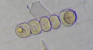 Sporocytes of Euduboscquella in Eutintinnus ciliate host