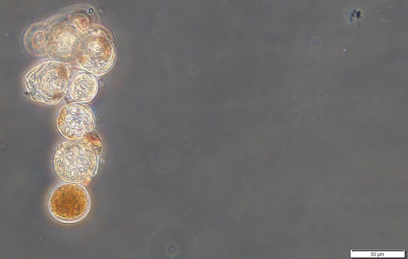 The dinoflagellate, Lingulodinium polyedra, parasitized by the perkinsid parasitoid, Parvilucifera sinerae