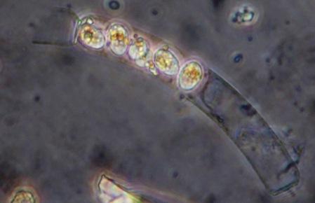 Dead Guinardia sp with Cryothecomonas sp. parasitoids